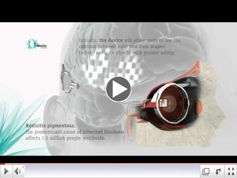 Bionic Eye - Animation