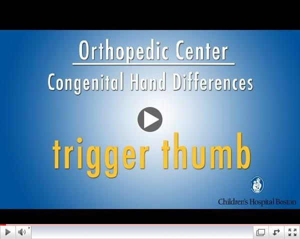 trigger thumb - congenital hand differences - Children's Hospital Boston