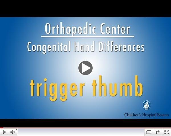 trigger thumb - congenital hand differences - Children's Hospital Boston