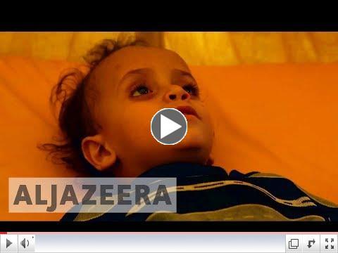 Frétt AlJazeera um kólerufaraldurinn í Jemen