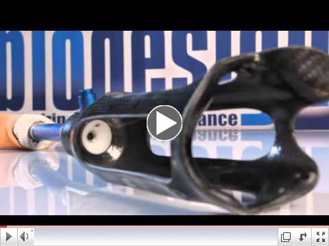 High-Fidelity Prosthetic Socket