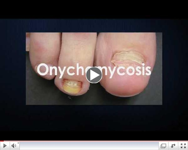 Toenail Fungus Laser Treatment:Disfiguring Toenail Fungus