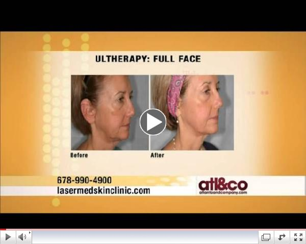 Dr. Jean Chapman on Atlanta & Company: Ultherapy Non-Invasive Facelift