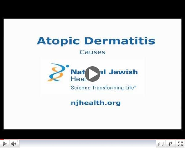 Atopic Dermatitis: Causes