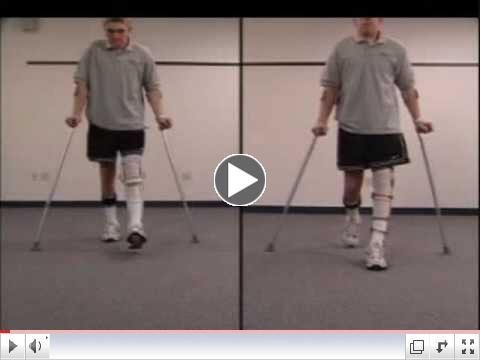 Stance Control KAFO vs. Locked Knee KAFO