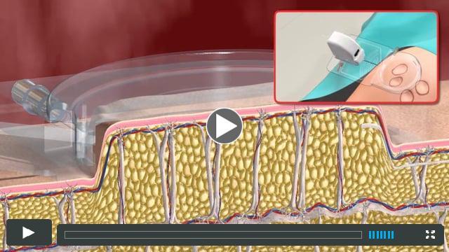 Cellfina - Cellulite Treatment _ Animated Simulation