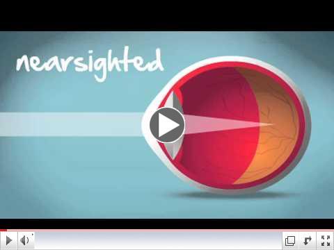 Understanding Myopia, Hyperopia & Astigmatism