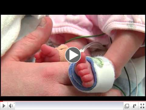 Ooutcomes of very small preterm infants
