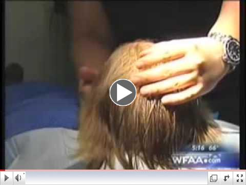 Hair Transplant and Hair Loss in Women, News Segment ABC