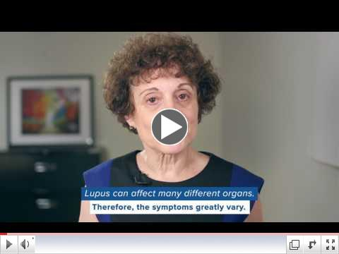 Fact or fiction - fatigue is a common symptom of lupus