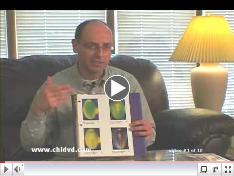 Benefits of the Sun Ancon Chi Machine - video #1 of 10