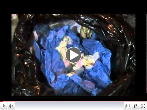 Bloody Trash At Dr. Emily's Abortion Clinic.wmv