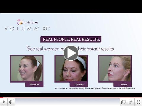 See more about Voluma XC